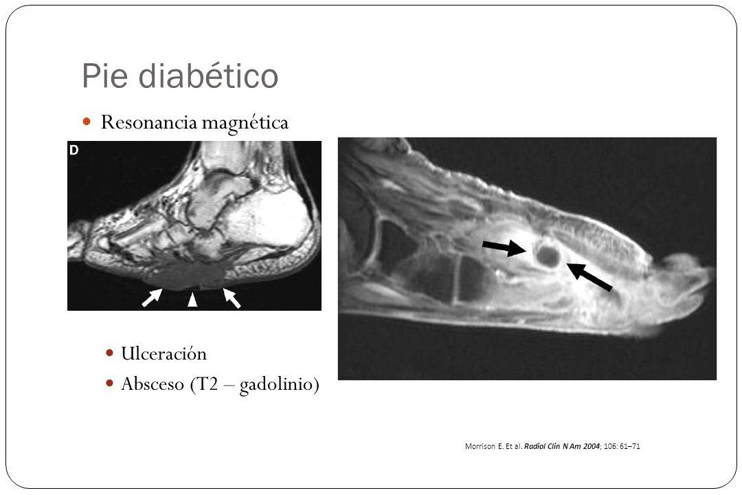 Pie diabético Resonancia magnética Ulceración Absceso (T2 – gadolinio)