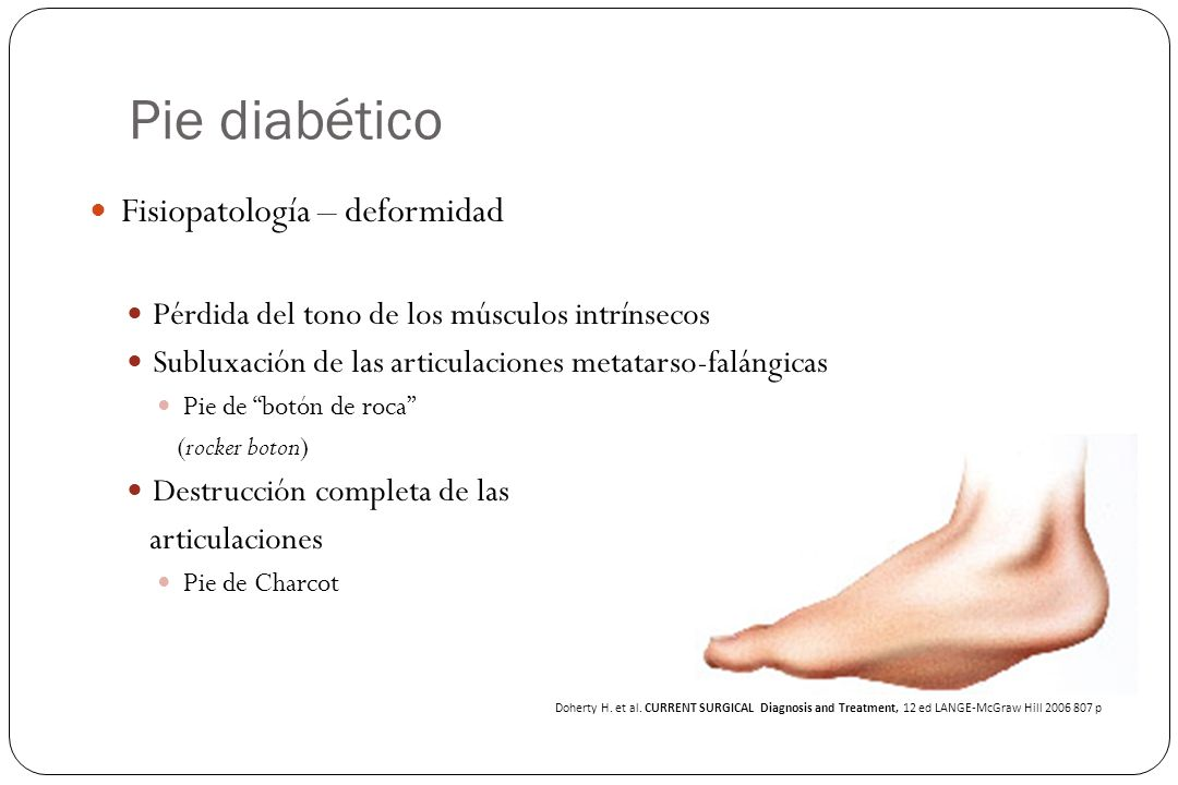 Pie diabético Fisiopatología – deformidad