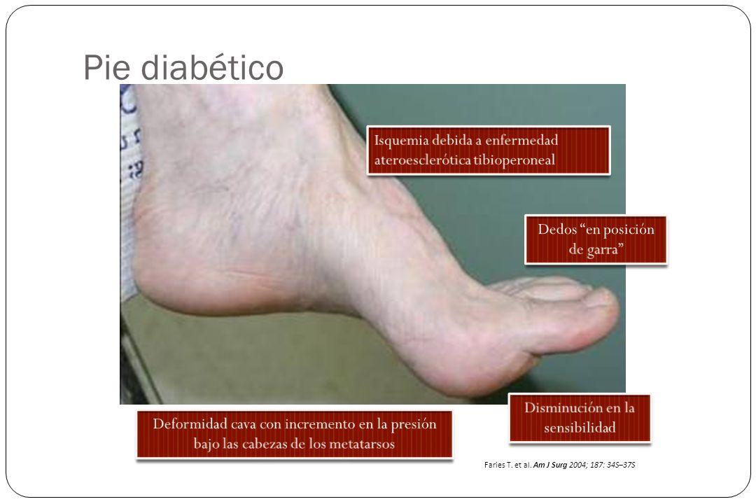 Pie diabético Isquemia debida a enfermedad ateroesclerótica tibioperoneal. Dedos en posición de garra