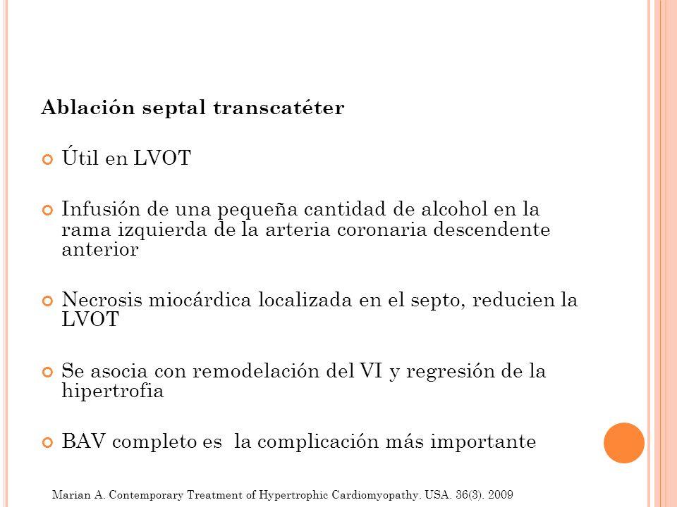 Ablación septal transcatéter Útil en LVOT