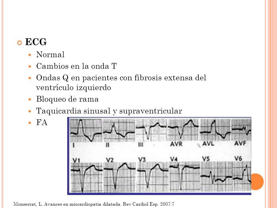 ECG Normal Cambios en la onda T