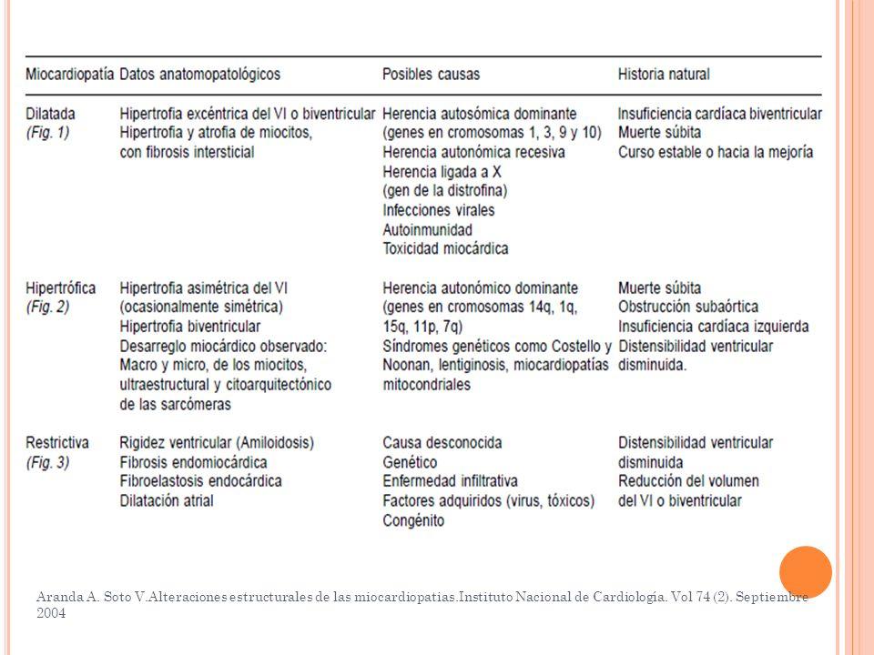 Aranda A. Soto V. Alteraciones estructurales de las miocardiopatias