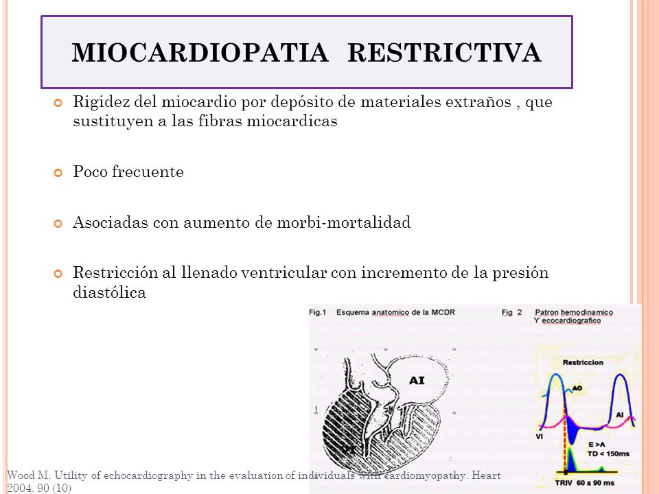 MIOCARDIOPATIA RESTRICTIVA