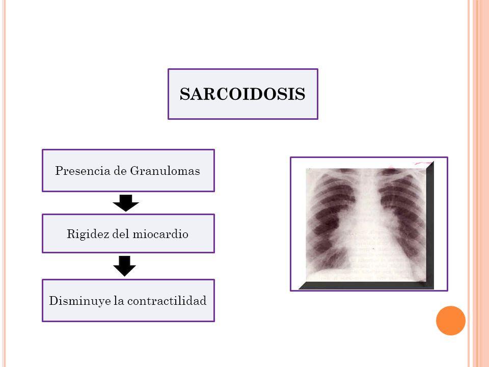 SARCOIDOSIS Presencia de Granulomas Rigidez del miocardio