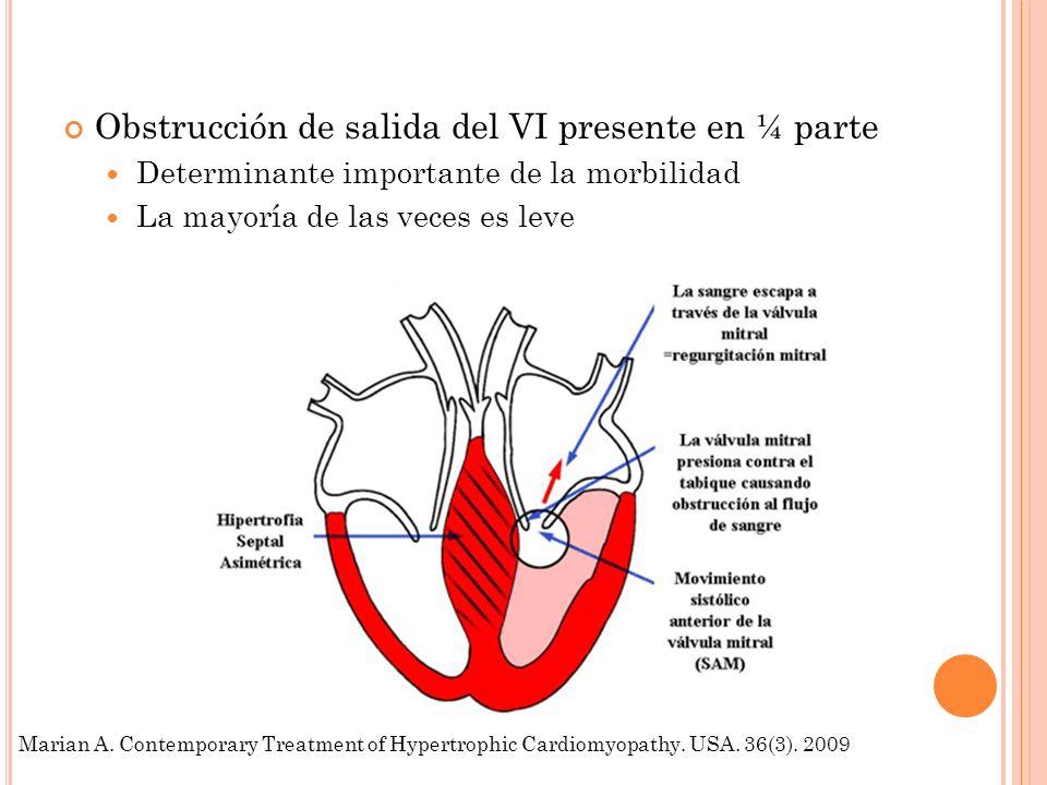 Obstrucción de salida del VI presente en ¼ parte