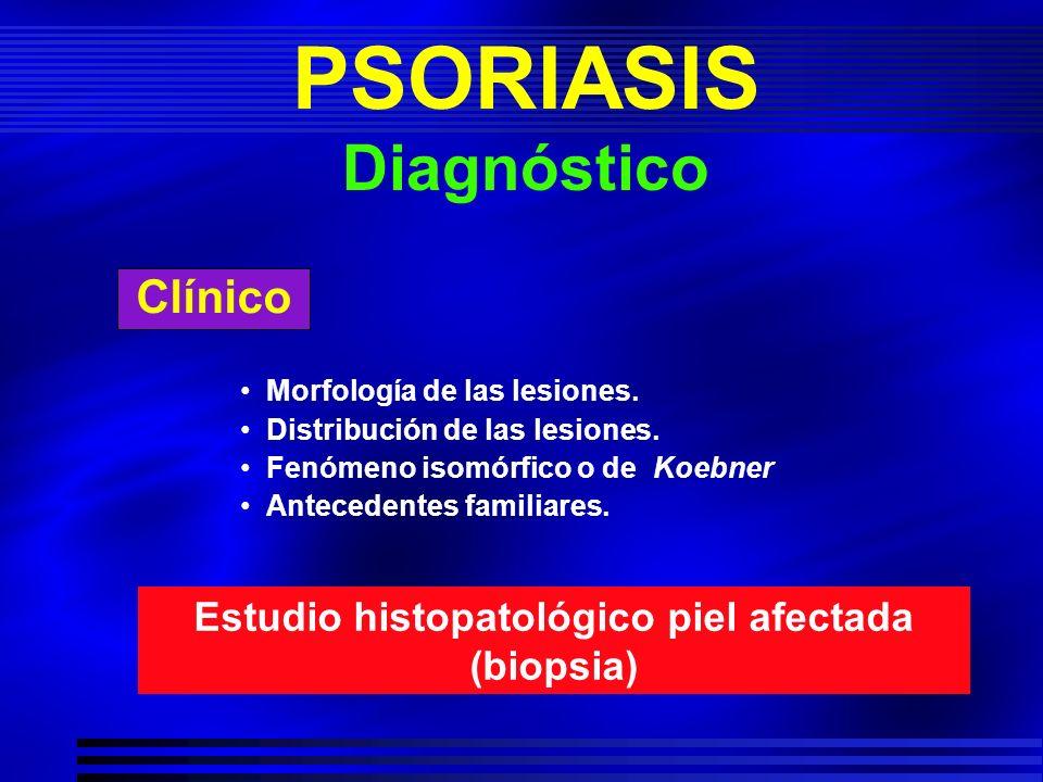 PSORIASIS Diagnóstico
