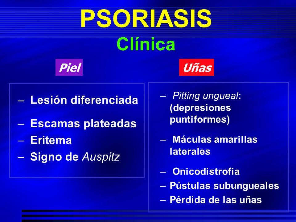 PSORIASIS Clínica Piel Uñas Lesión diferenciada Escamas plateadas