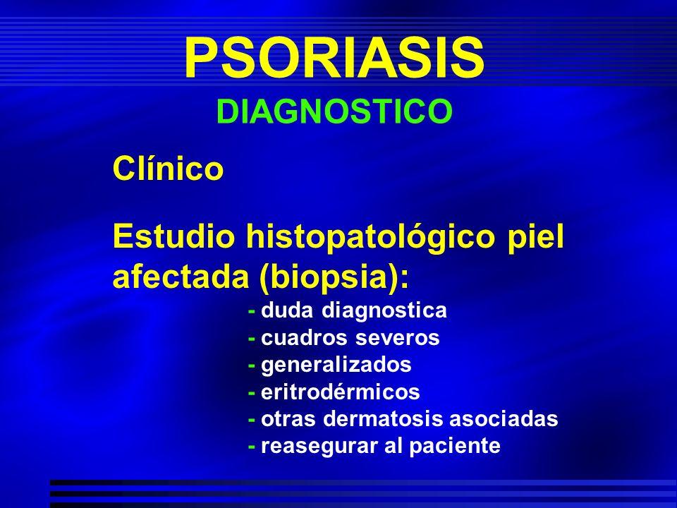 PSORIASIS DIAGNOSTICO