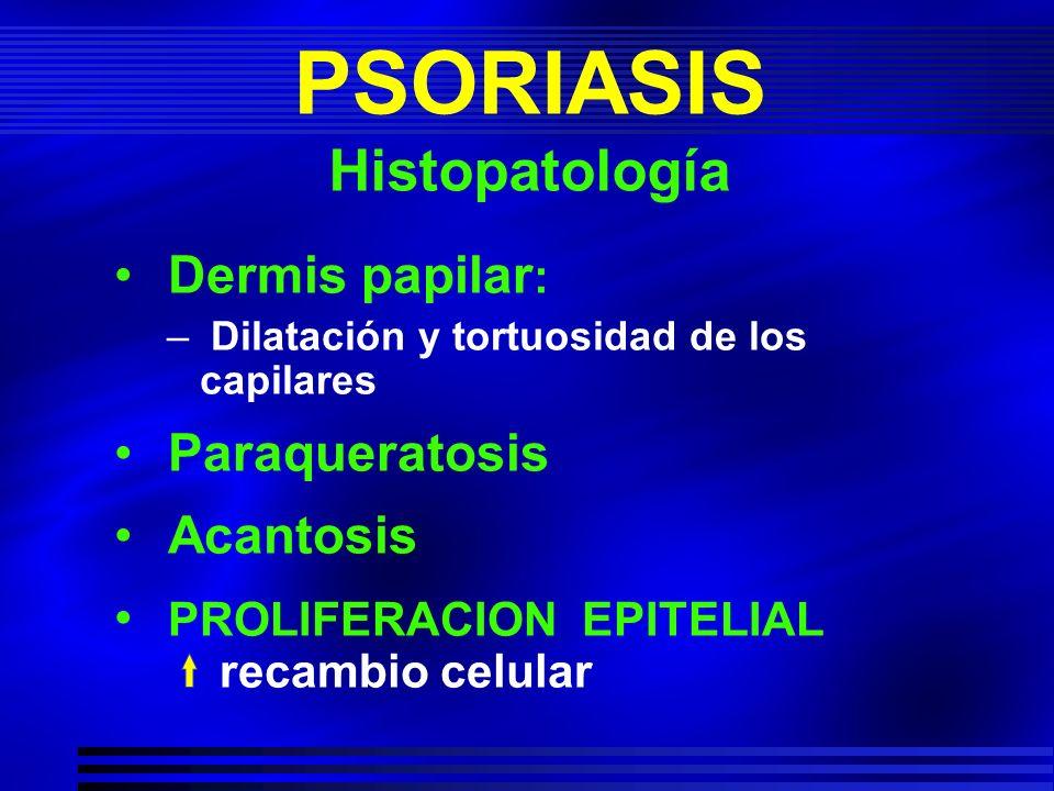 PSORIASIS Histopatología
