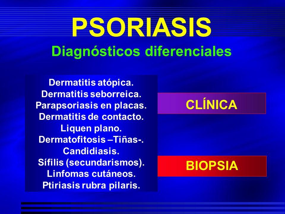 PSORIASIS Diagnósticos diferenciales