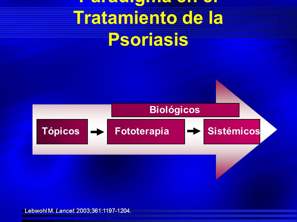 Como distinguir priva la psoriasis
