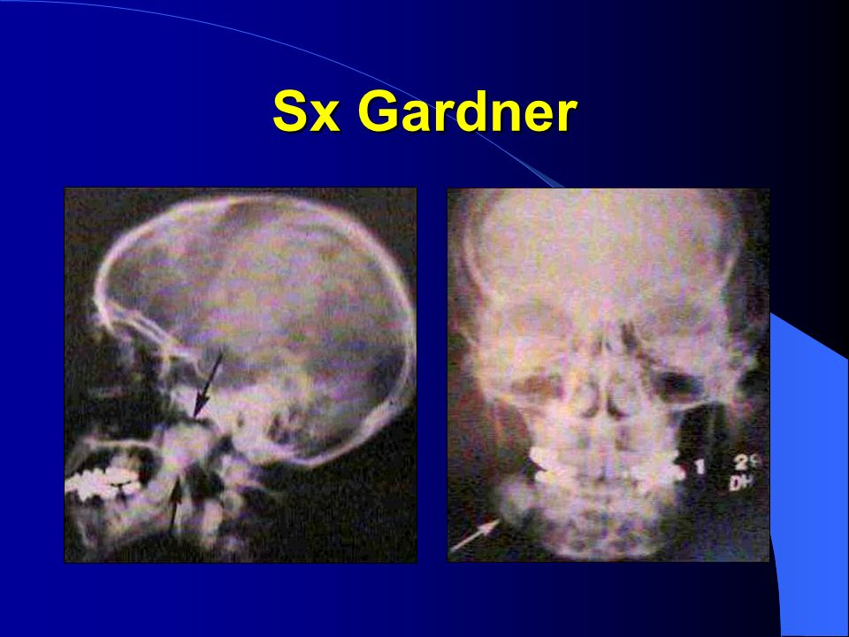 Sx Gardner