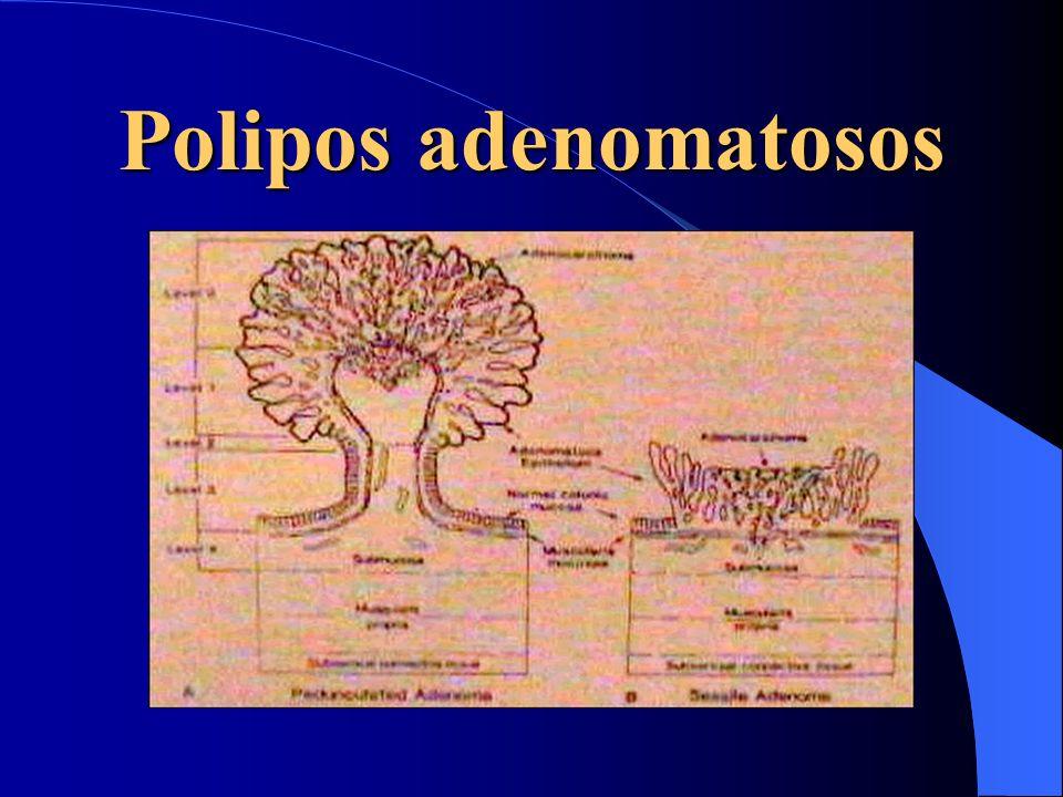 Polipos adenomatosos