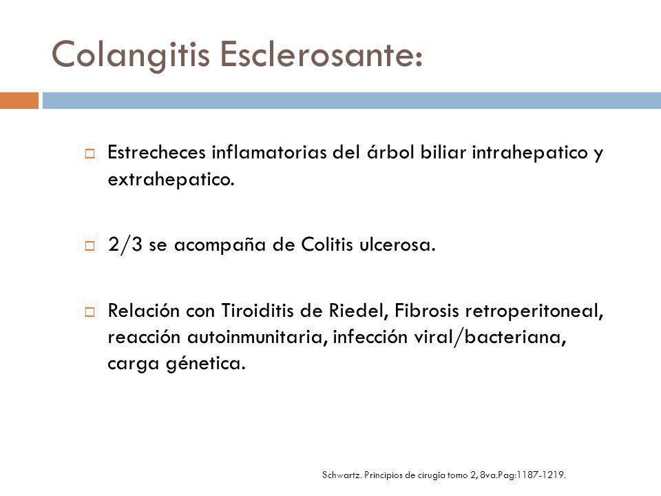 Colangitis Esclerosante: