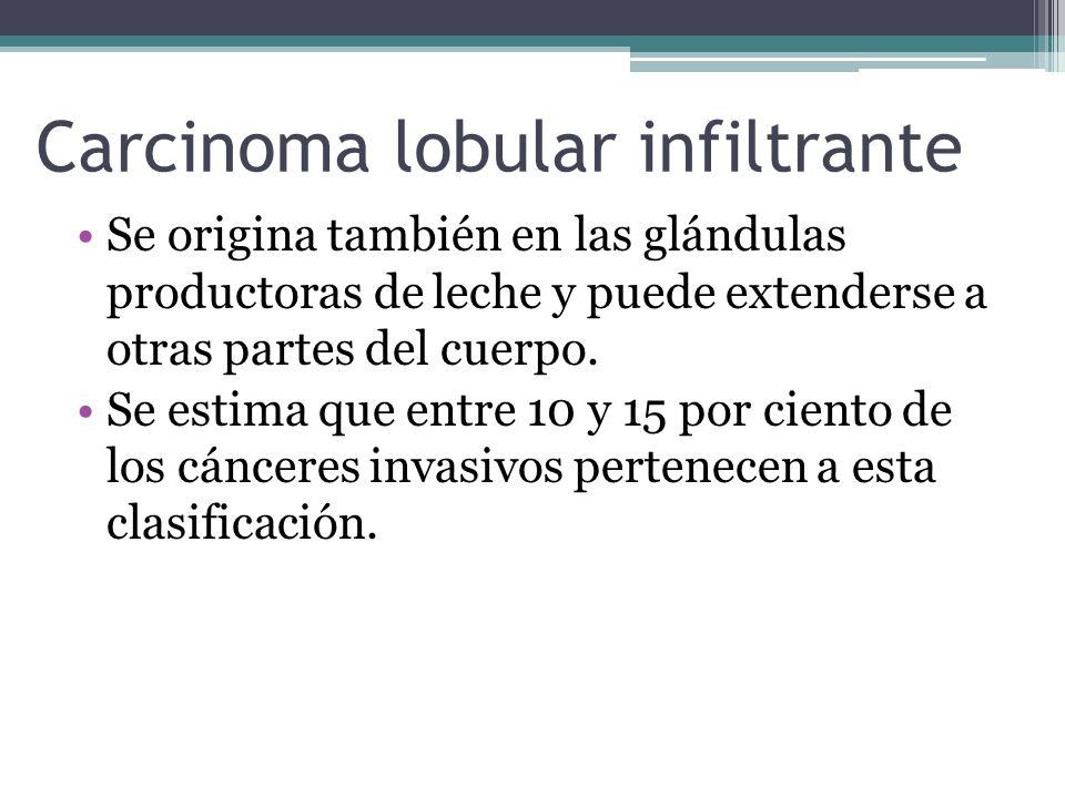 Carcinoma lobular infiltrante
