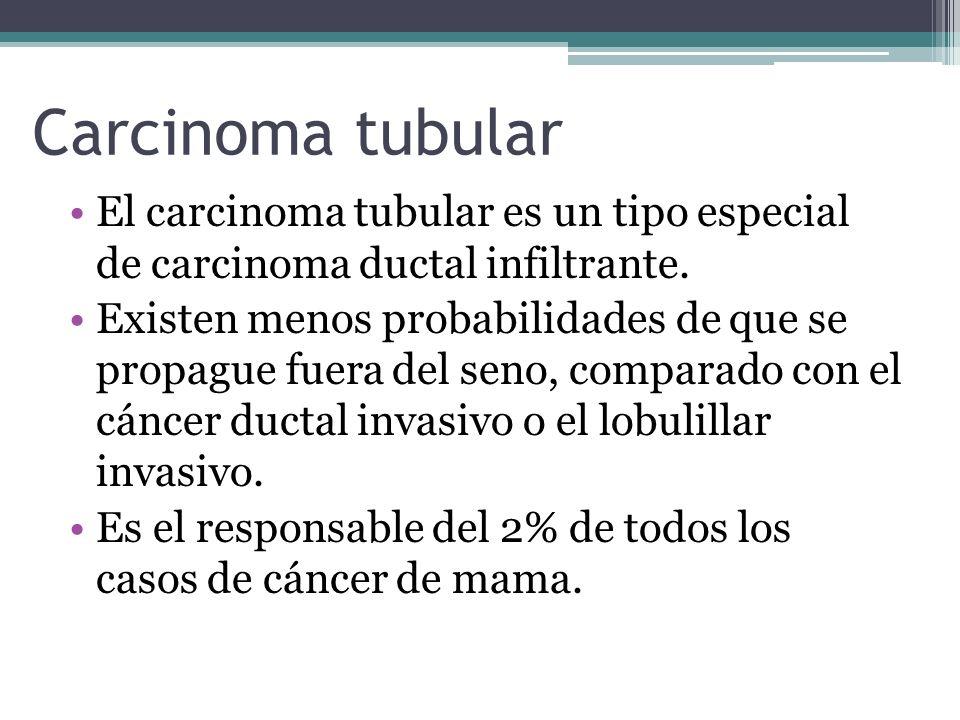 Carcinoma tubularEl carcinoma tubular es un tipo especial de carcinoma ductal infiltrante.