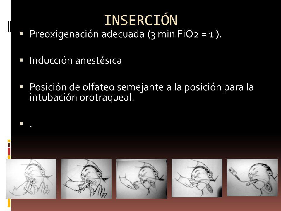 INSERCIÓN Preoxigenación adecuada (3 min FiO2 = 1 ).