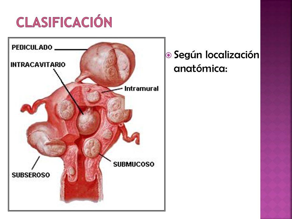 Clasificación Según localización anatómica: