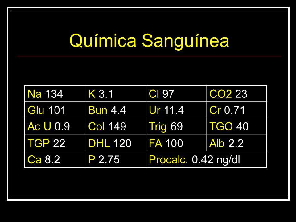 Química Sanguínea Na 134 K 3.1 Cl 97 CO2 23 Glu 101 Bun 4.4 Ur 11.4