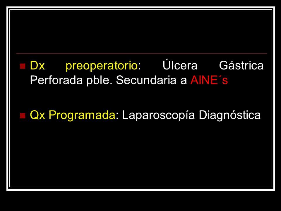Dx preoperatorio: Úlcera Gástrica Perforada pble. Secundaria a AINE´s