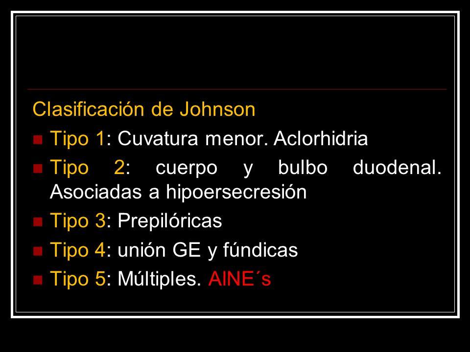 Clasificación de Johnson