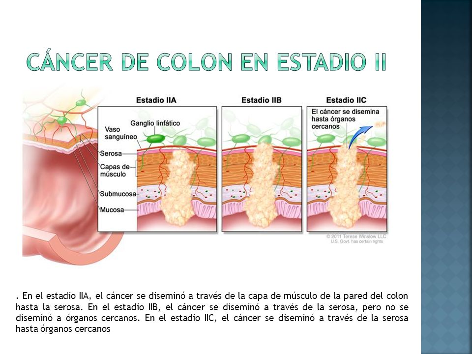 Cáncer de colon en estadio II