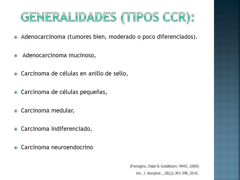 Generalidades (Tipos CCR):