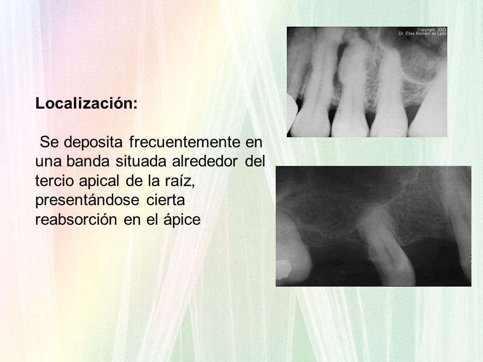 Localización: Se deposita frecuentemente en una banda situada alrededor del tercio apical de la raíz, presentándose cierta reabsorción en el ápice.