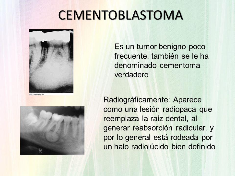 CEMENTOBLASTOMA Es un tumor benigno poco frecuente, también se le ha denominado cementoma verdadero.