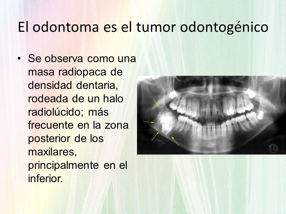 El odontoma es el tumor odontogénico