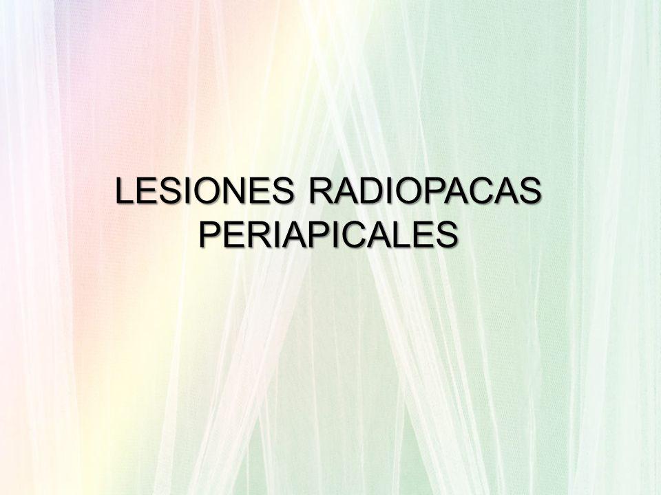 LESIONES RADIOPACAS PERIAPICALES