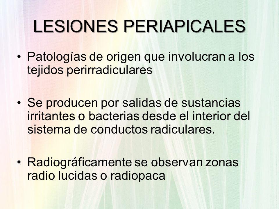 LESIONES PERIAPICALES
