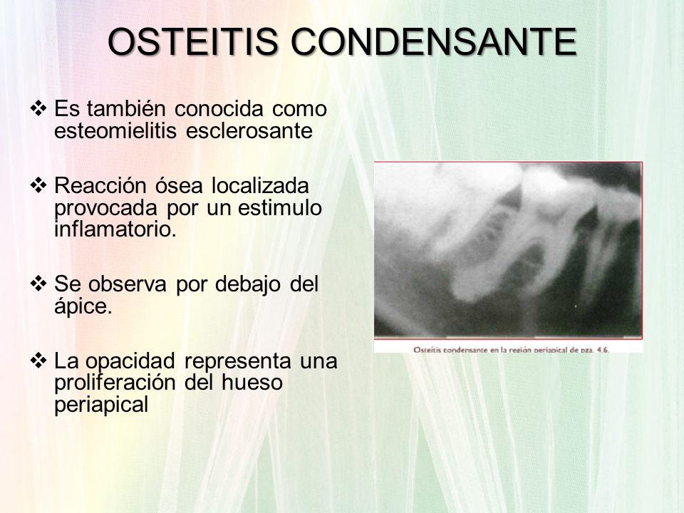 OSTEITIS CONDENSANTEEs también conocida como esteomielitis esclerosante. Reacción ósea localizada provocada por un estimulo inflamatorio.
