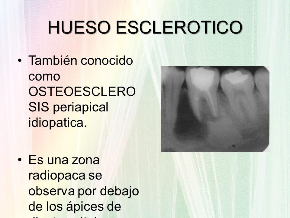 HUESO ESCLEROTICOTambién conocido como OSTEOESCLEROSIS periapical idiopatica.