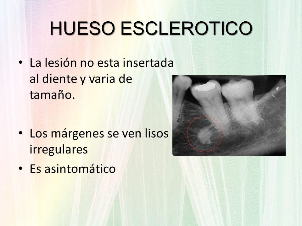 HUESO ESCLEROTICOLa lesión no esta insertada al diente y varia de tamaño. Los márgenes se ven lisos irregulares.