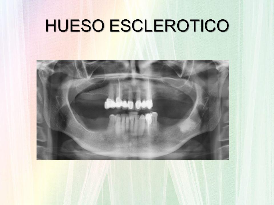 HUESO ESCLEROTICO