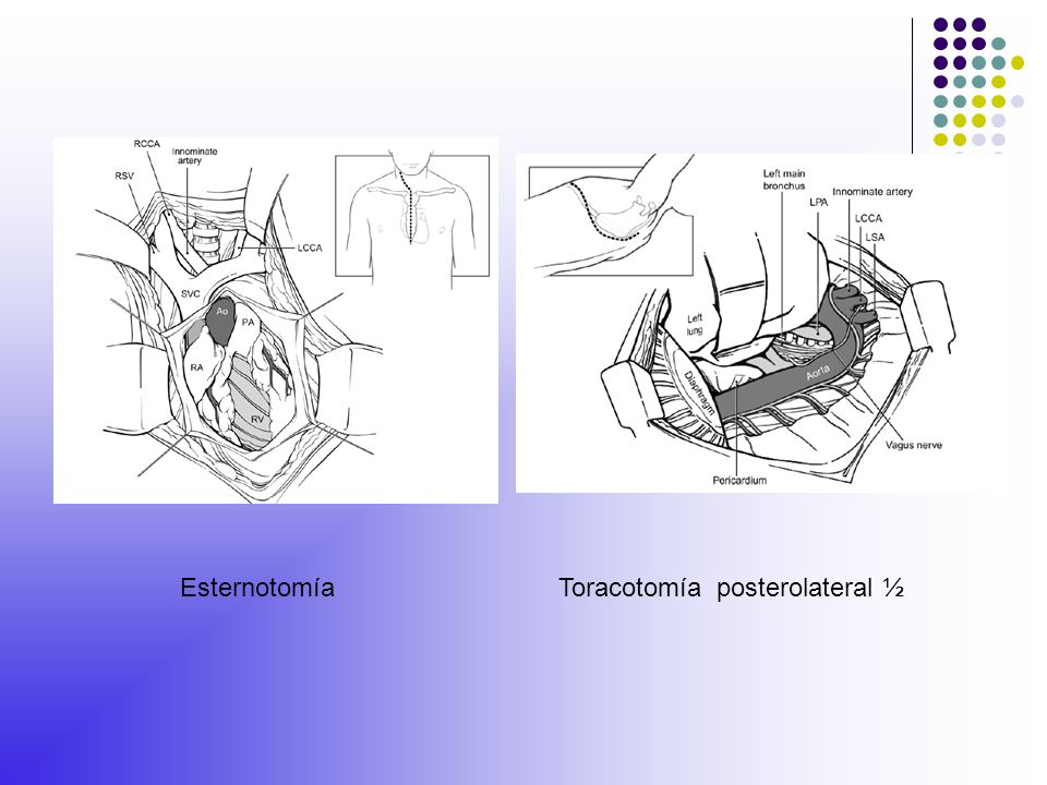 Esternotomía Toracotomía posterolateral ½