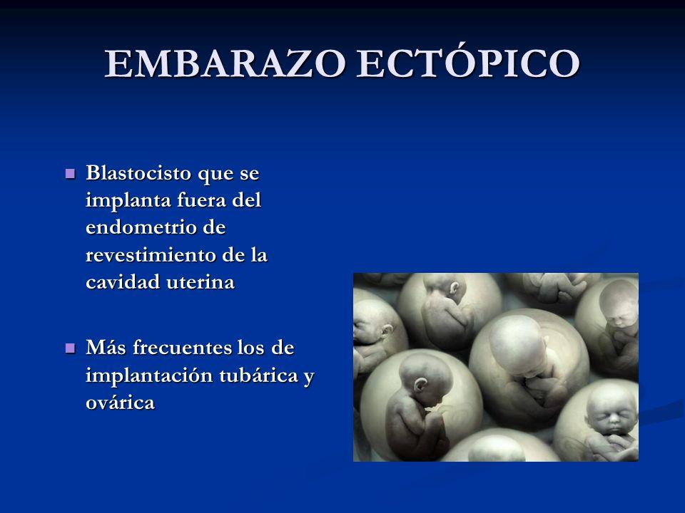 EMBARAZO ECTÓPICO Blastocisto que se implanta fuera del endometrio de revestimiento de la cavidad uterina.