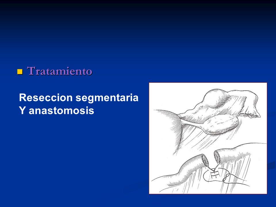 Tratamiento Reseccion segmentaria Y anastomosis