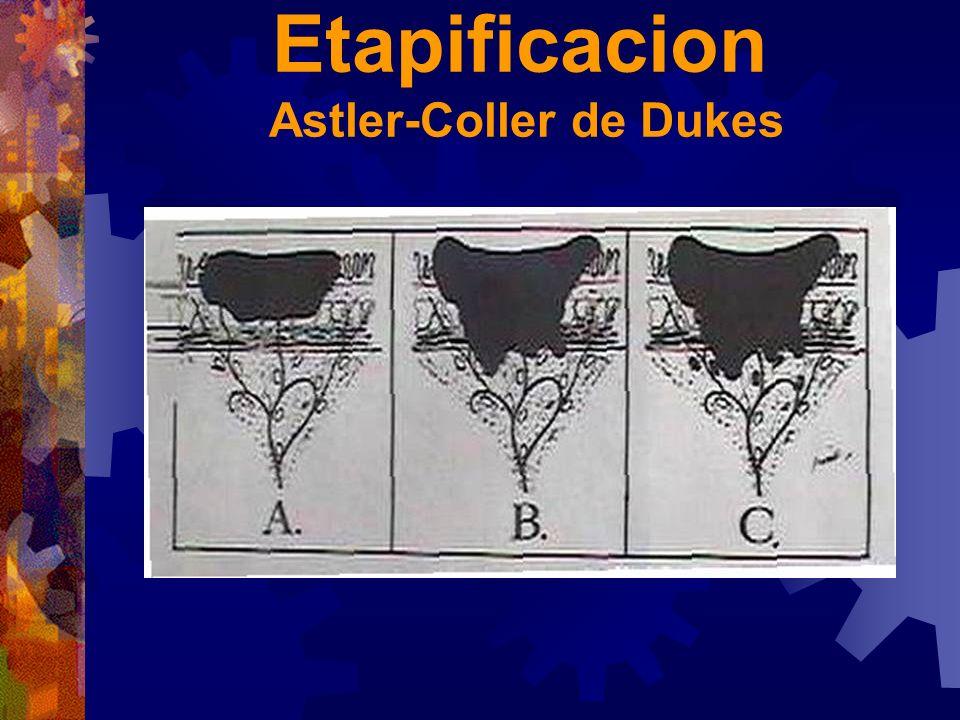Etapificacion Astler-Coller de Dukes