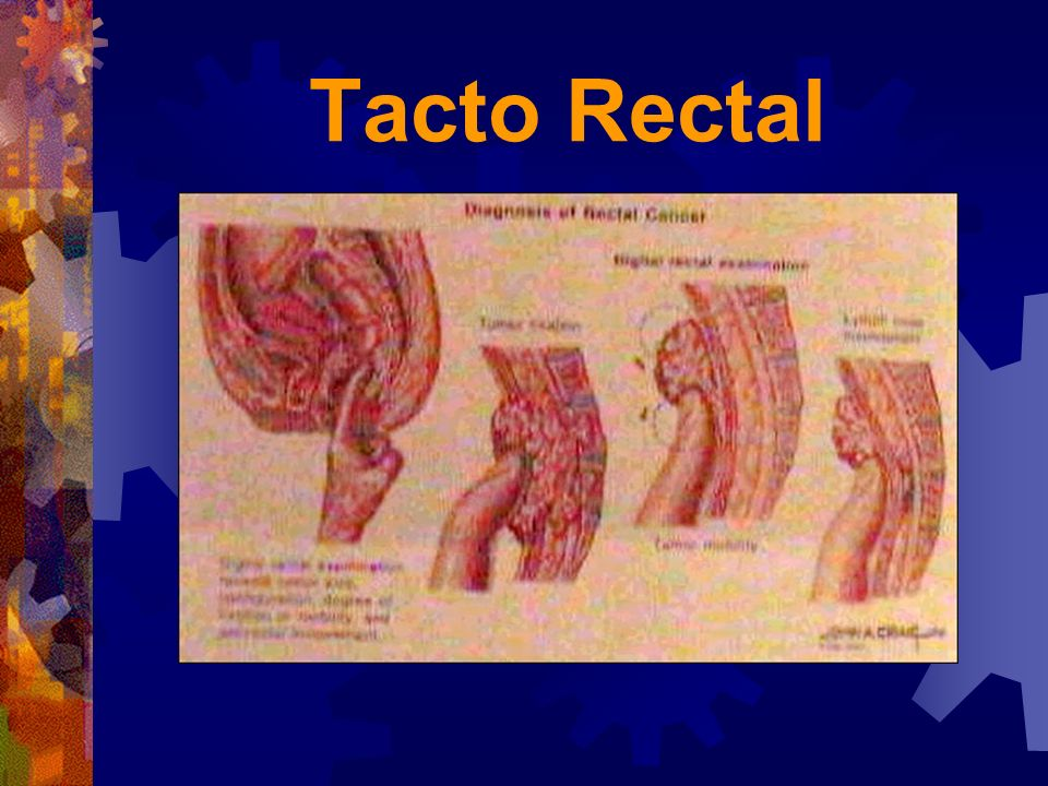 Tacto Rectal