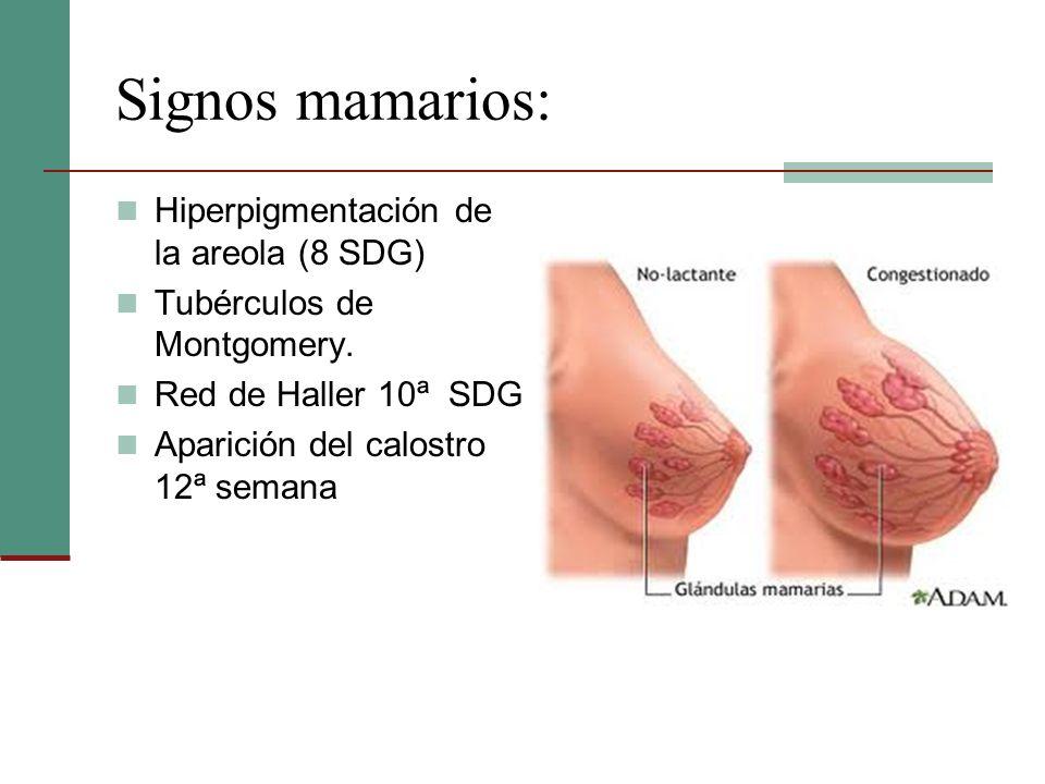 Signos mamarios: Hiperpigmentación de la areola (8 SDG)