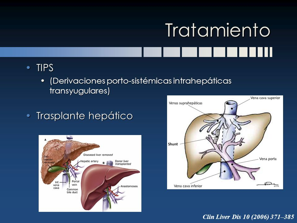 Tratamiento TIPS Trasplante hepático