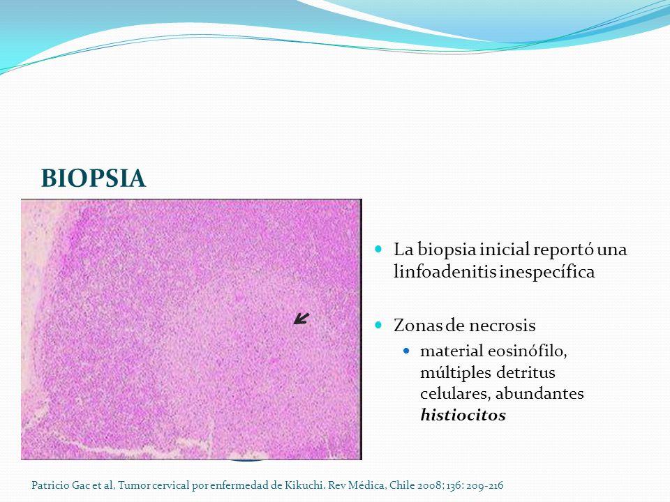 BIOPSIA La biopsia inicial reportó una linfoadenitis inespecífica