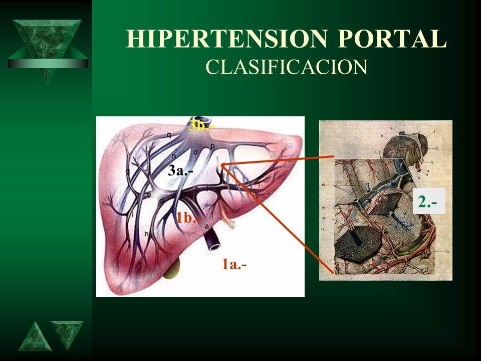 HIPERTENSION PORTAL CLASIFICACION