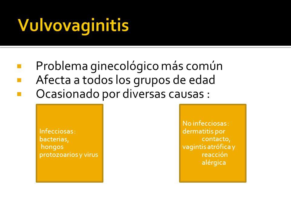 Vulvovaginitis Problema ginecológico más común