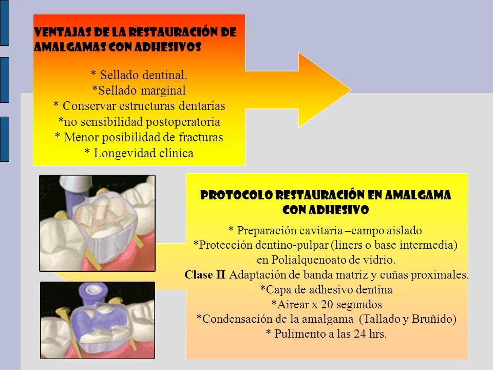 * Conservar estructuras dentarias *no sensibilidad postoperatoria
