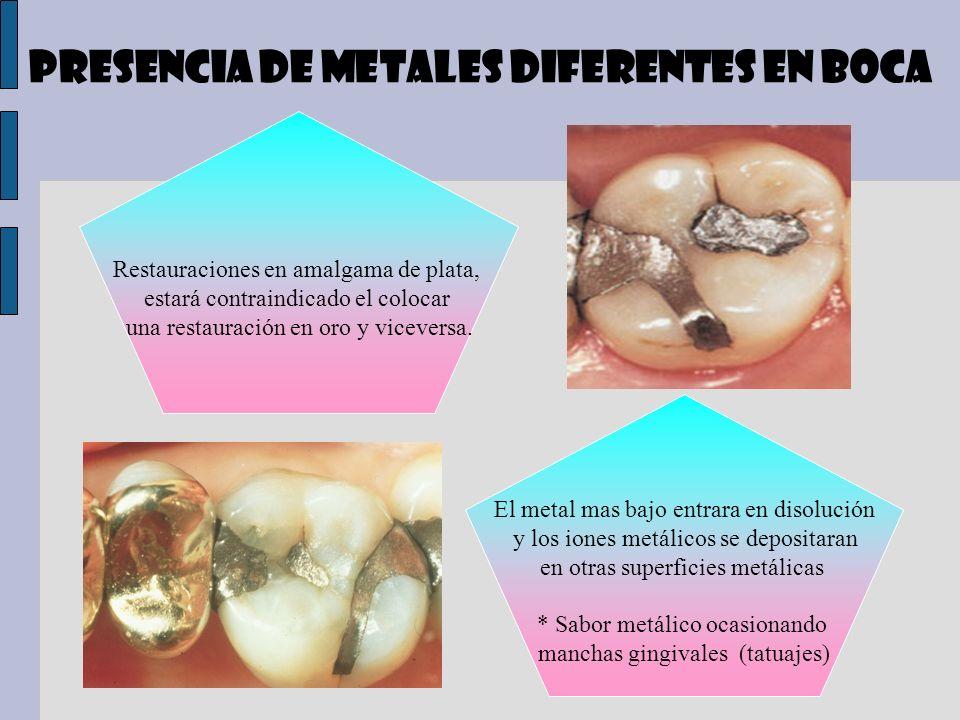 Presencia de metales diferentes en boca