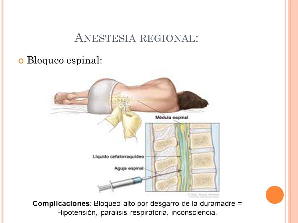 Anestesia regional: Bloqueo espinal: