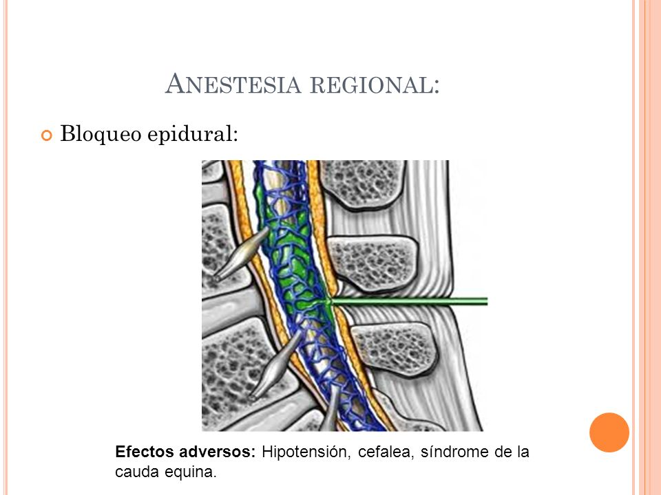 Anestesia regional: Bloqueo epidural: